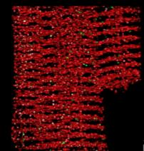 Cardiovascularbtn-100x100-72RGB
